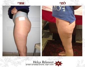 תמונות לפני ואחרי של לקוחה רק באמצע טיפולי צלוליט שלה.