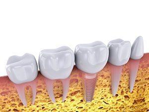 השתלות שיניים במרכז