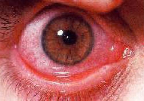 מדוע אתם סובלים מעיניים אדומות?