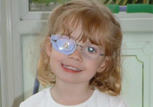חשוב לאבחן עין עצלה מוקדם ככל האפשר!