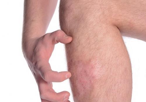 טיפול בפסוריאזיס